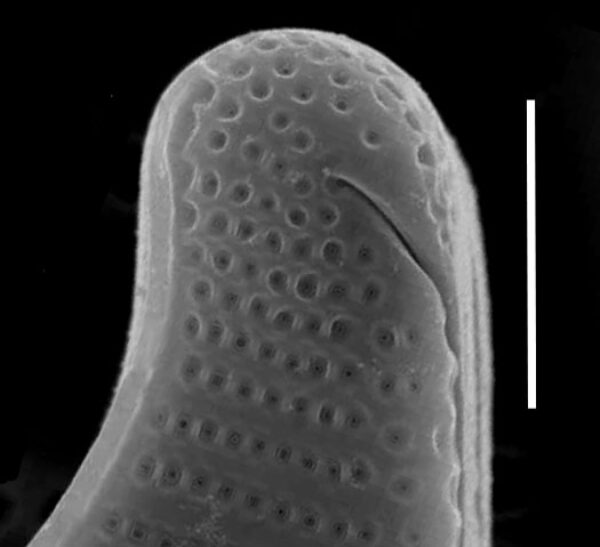 Eunotia sudetica SEM1