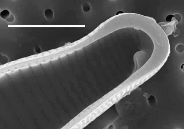 Eunotia sudetica SEM2