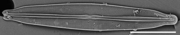 Frustulia pseudomagaliesmontana SEM1
