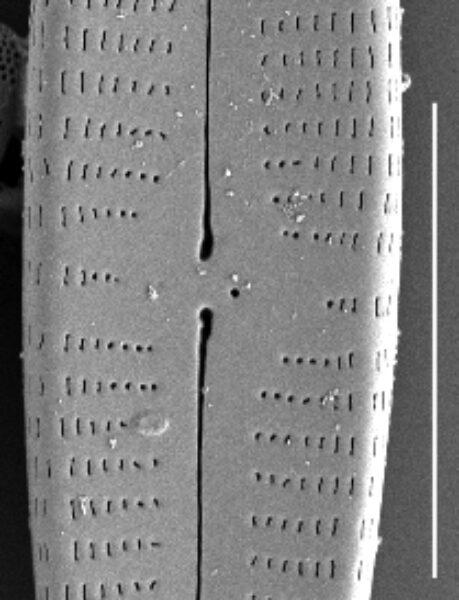 Gomphonema californicum SEM1