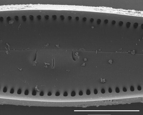 Gomphoneis oreophila SEM4