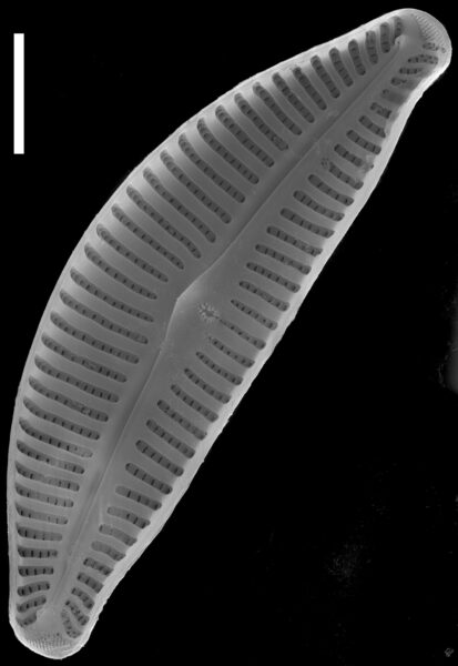 Cymbella affinis SEM1