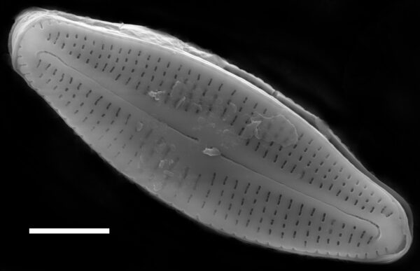Achnanthidium alpestre SEM1