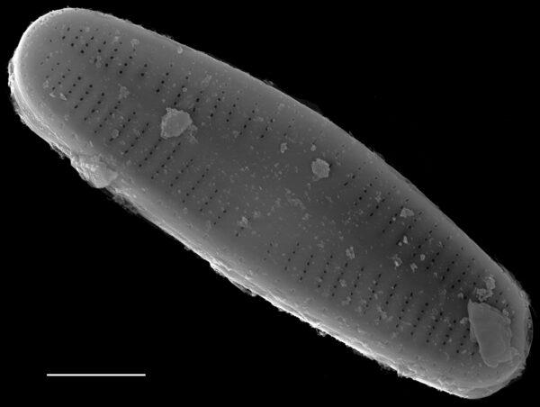 Achnanthidium kranzii SEM2