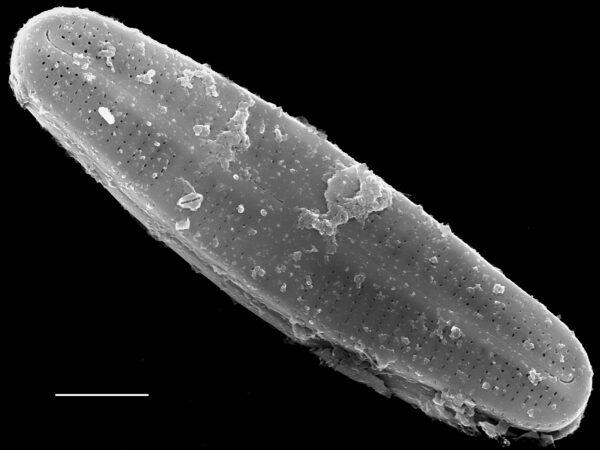 Achnanthidium kranzii SEM3