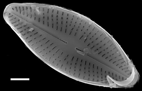 Karayevia clevei SEM1
