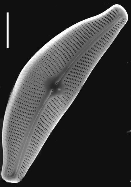 Cymbella tumida SEM1