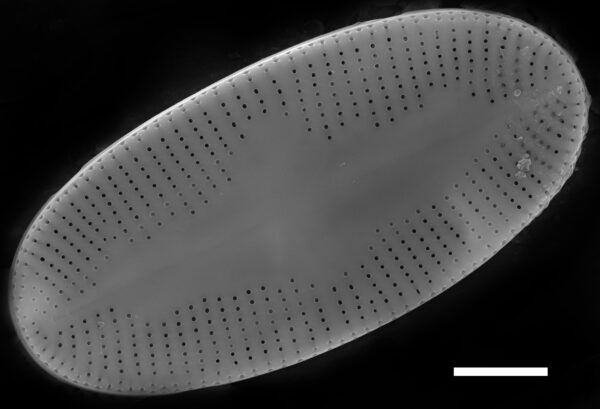 Psammothidium daonense SEM1