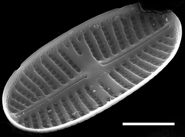 Psammothidium curtissimum SEM1