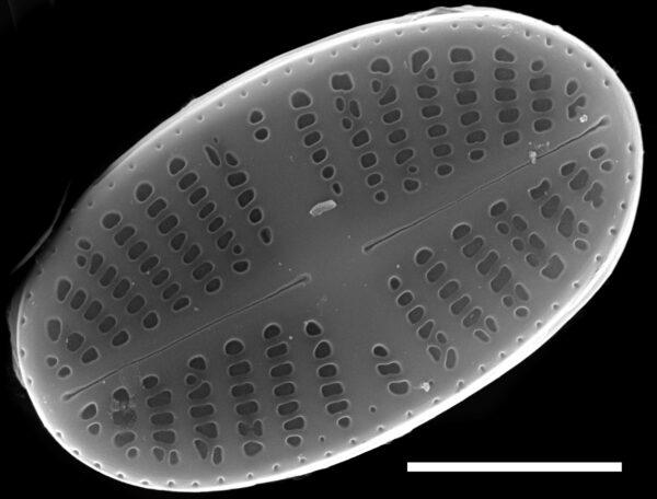 Psammothidium curtissimum SEM2