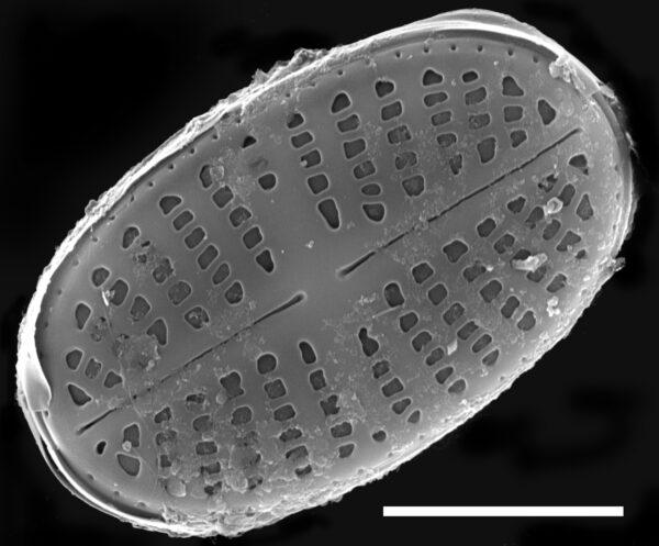 Psammothidium curtissimum SEM3