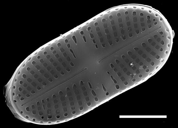 Psammothidium didymum SEM4