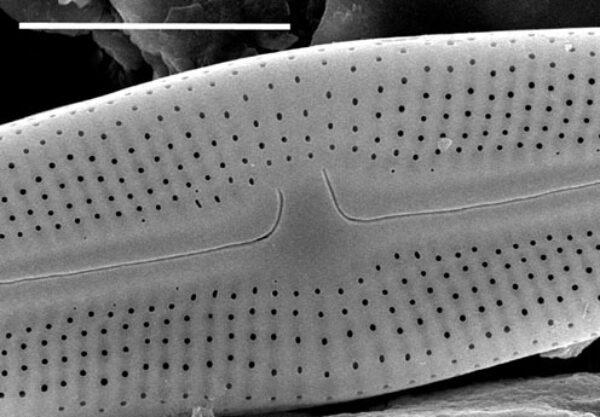 Muelleria gibbula SEM2