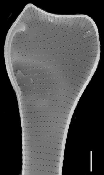 Actinella punctata SEM2