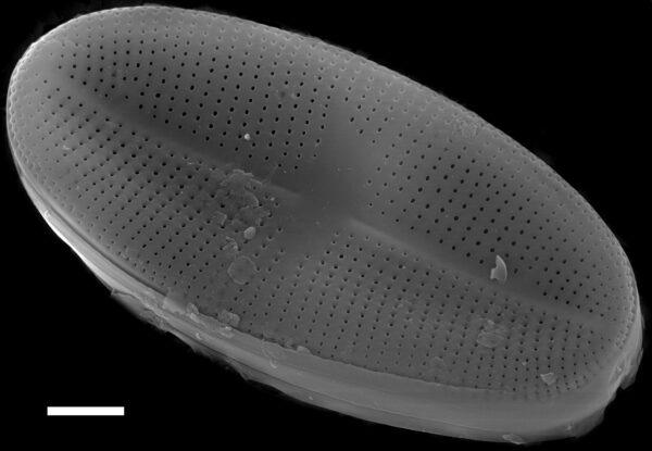 Psammothidium bioretii SEM1