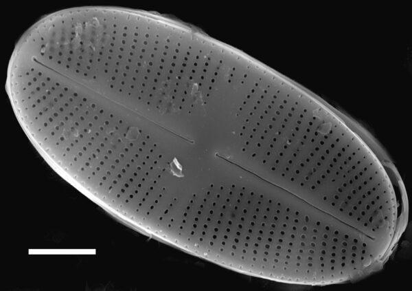 Psammothidium daonense SEM3