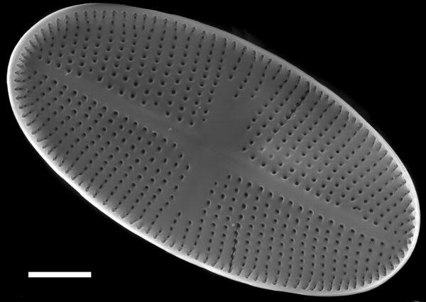 Psammothidium bioretii SEM2