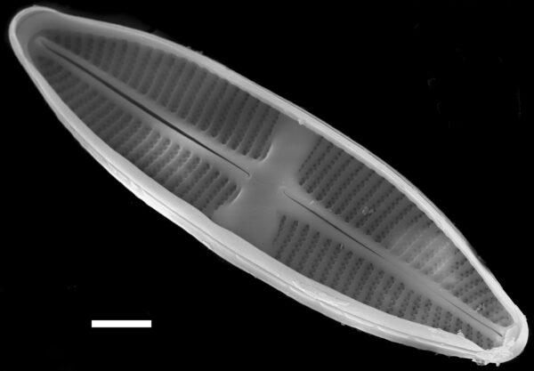Lemnicola hungarica SEM1