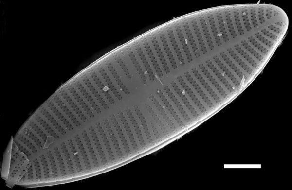 Lemnicola hungarica SEM2