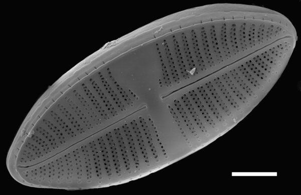 Lemnicola hungarica SEM3