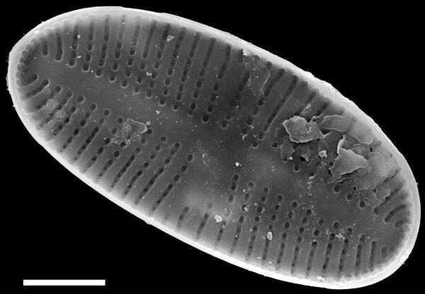 Psammothidium pennsylvanicum SEM1