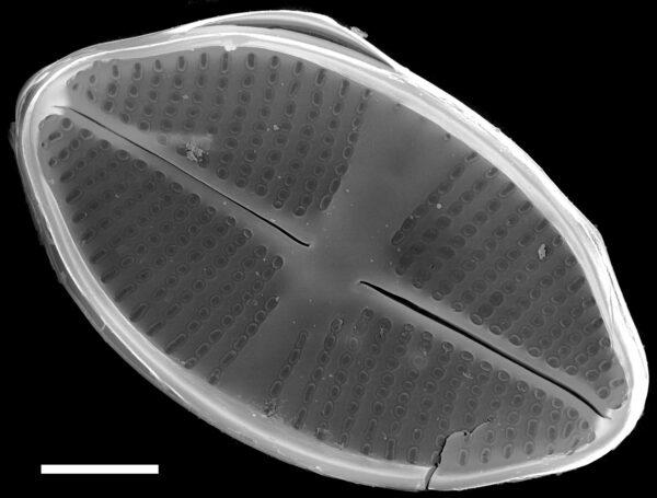 Psammothidium harveyi SEM4