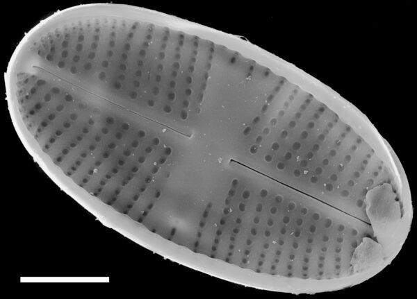 Psammothidium pennsylvanicum SEM4