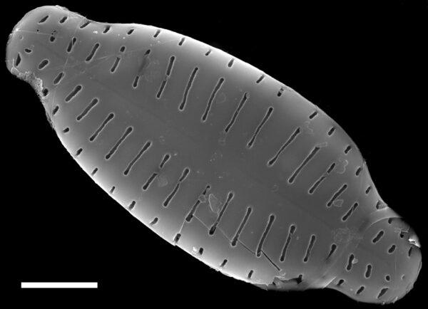 Karayevia ploenensis var gessneri SEM1