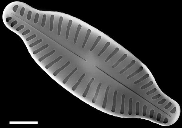 Karayevia ploenensis var gessneri SEM4