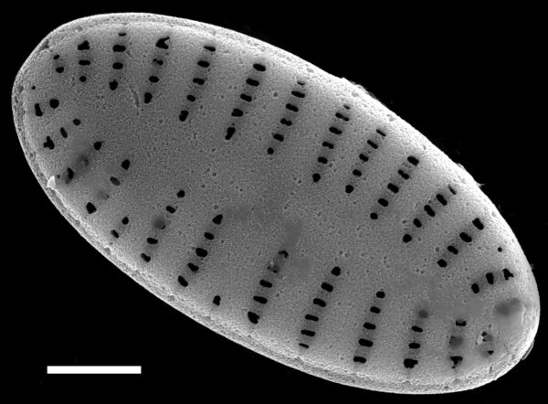 Karayevia oblongella SEM1
