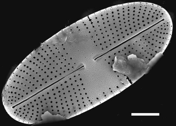 Karayevia oblongella SEM2