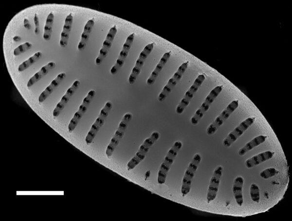 Karayevia oblongella SEM4