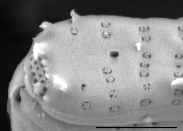 Fragilaria crotonensis SEM3
