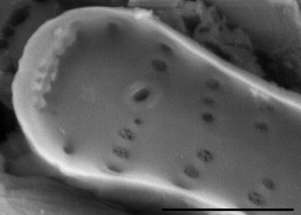 Fragilaria crotonensis SEM4
