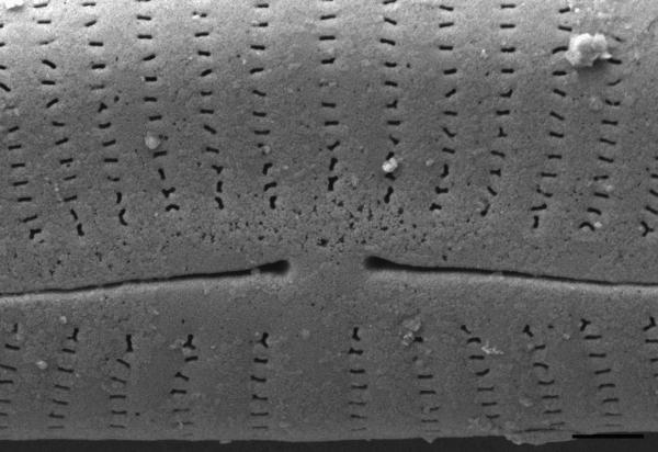 Encyonema norvegicum SEM1