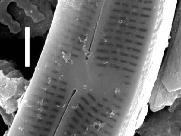 Nupela tenuicephala SEM1