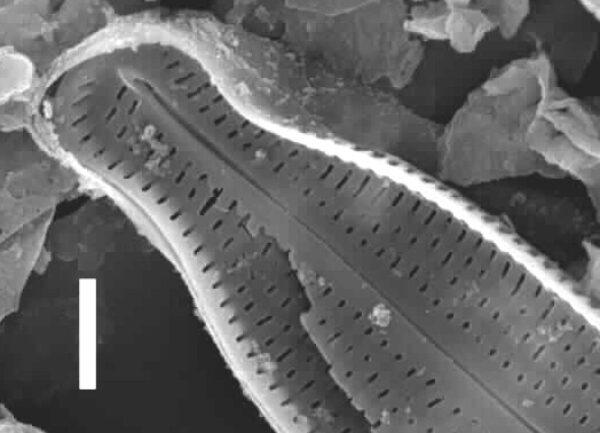 Nupela tenuicephala SEM2
