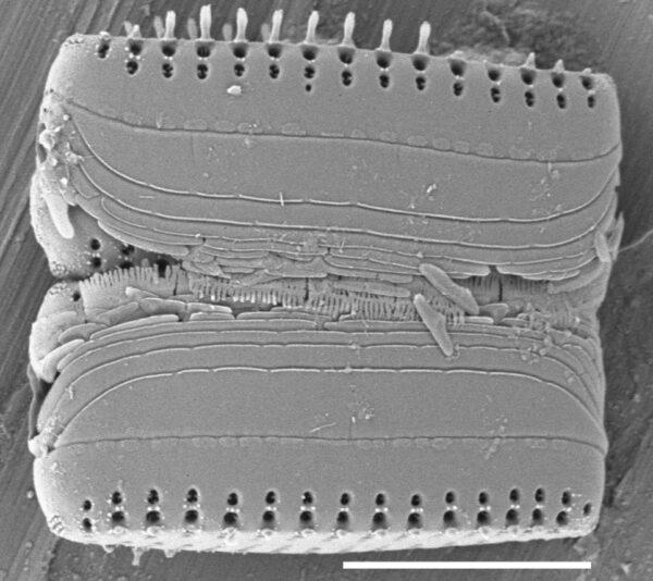 Pseudostaurosira neoelliptica SEM4