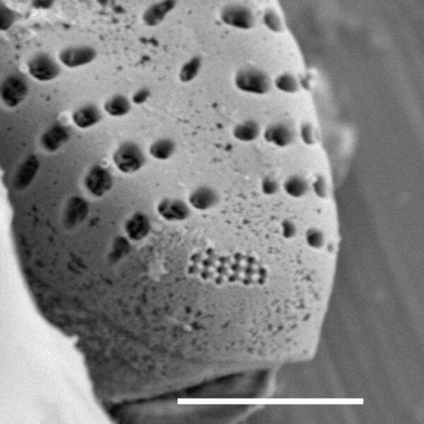 Pseudostaurosira neoelliptica SEM2