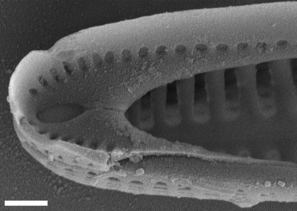 Rhoicosphenia californica SEM2