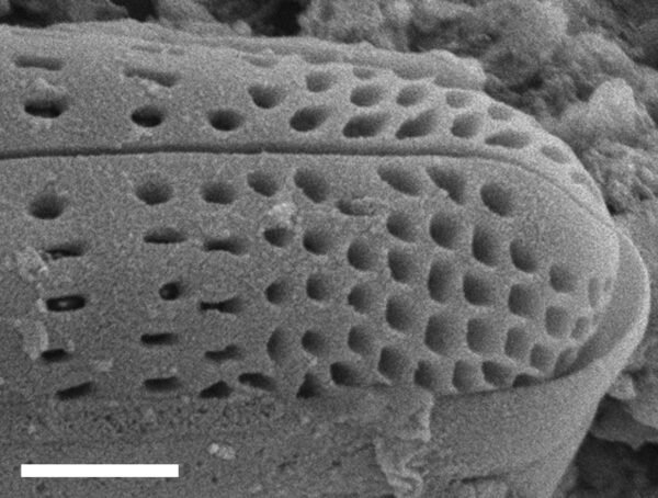 Rhoicosphenia californica SEM3