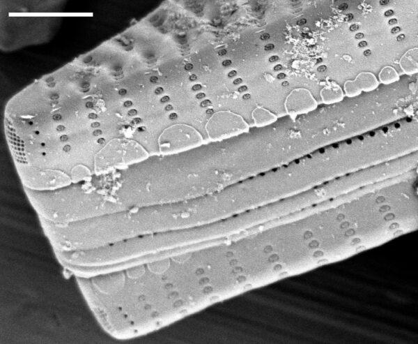 Fragilaria vaucheriae SEM4