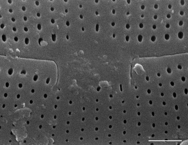 Frustulia creuzburgensis SEM1