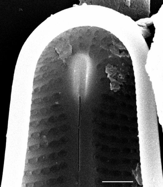 Frustulia creuzburgensis SEM2