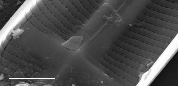 Stauroneis kingstonii SEM2