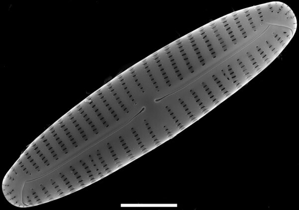 Encyonema appalachianum SEM1