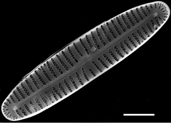 Encyonema appalachianum SEM2