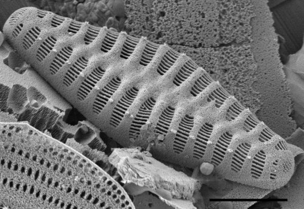 Staurosirella rhomboides SEM2