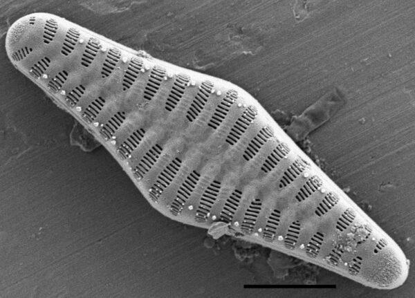 Staurosirella rhomboides SEM1