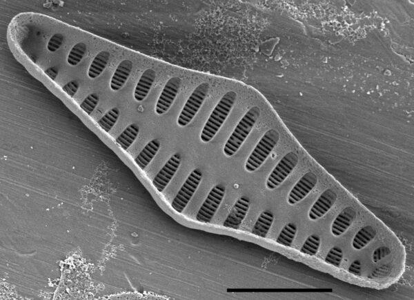 Staurosirella rhomboides SEM3